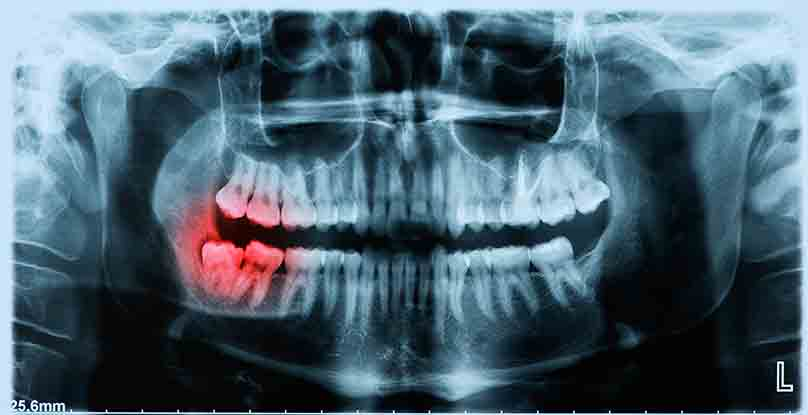 impacted_tooth x-ray